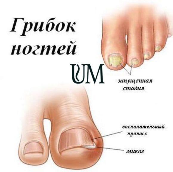 Грибок ногтей на ногах лечение в домашних условиях уксусом