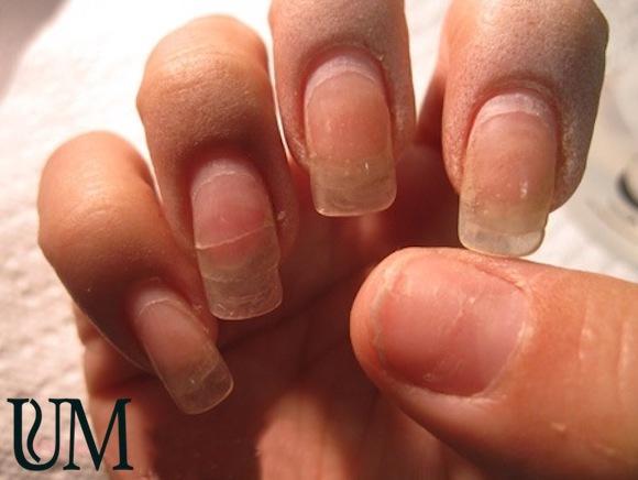 Эффективный препарат против грибка кожи