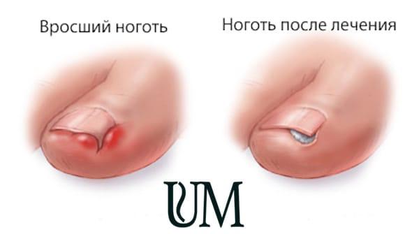Кто смог вылечить грибок ногтей