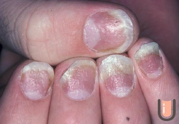 Волнистые ногти на больших пальцах ног